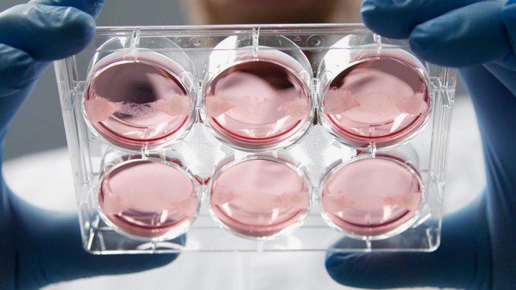 Klinische Studie mit Stammzellen